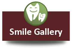 dentist-smile-gallery2